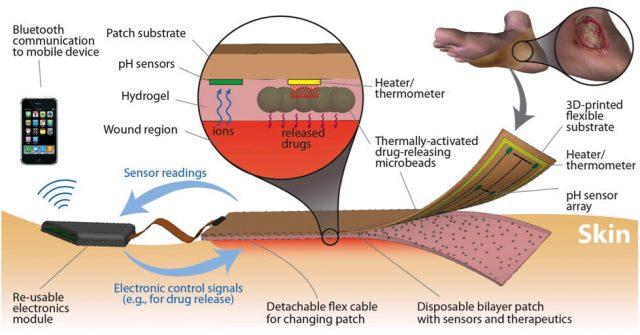 Schemat działania inteligentnego bandaża